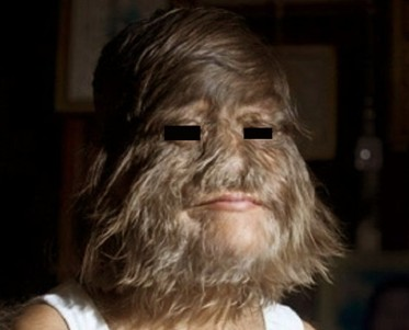 hypertrichosis-pictures